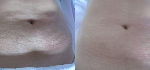 Remodelare corporala ultrasunete