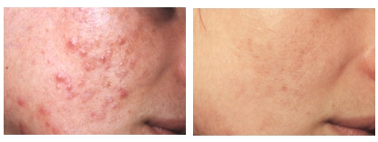 Tratament laser si peeling chimic antiacneic