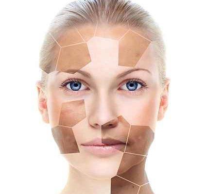 Tratamentul petelor pigmentare